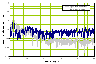 BAM TBI frequency domain waveform