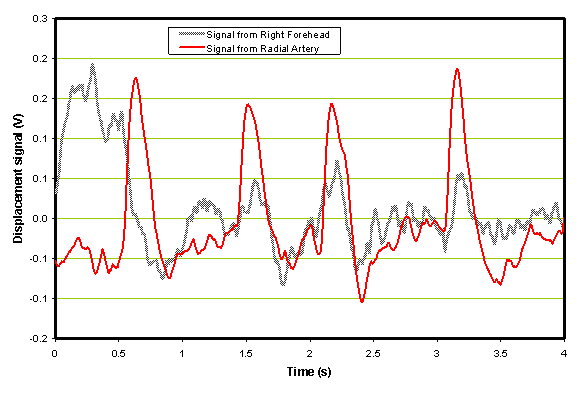 Example of sampled patient waveforms