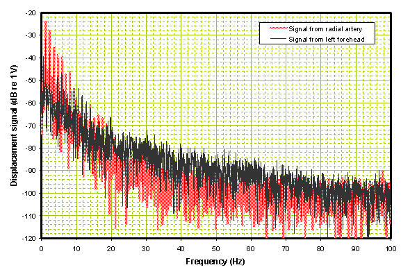 Frequency domain comparison of traces